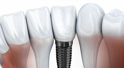 Разновидности имплантации зубов